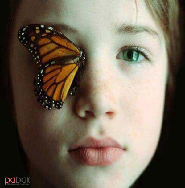 بیماری پروانه ای چیست