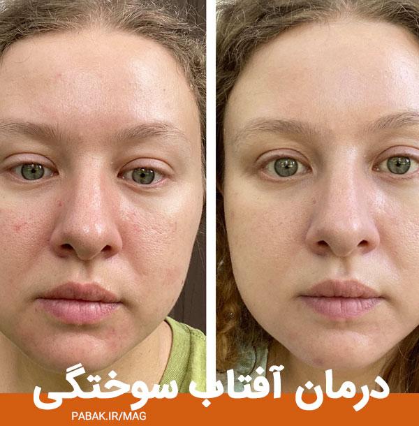 آفتاب سوختگی - ویتامین ای برای سلامت پوست
