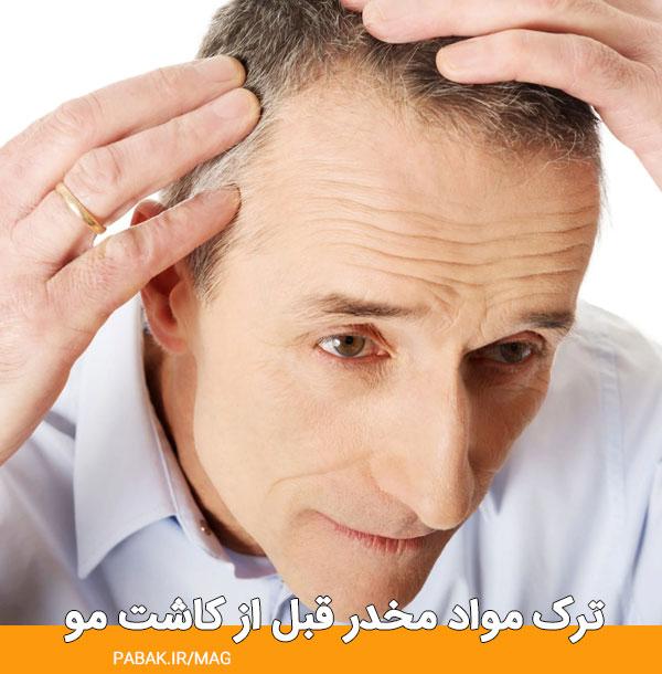 مواد مخدر قبل از کاشت مو - مراقبت های قبل کاشت مو