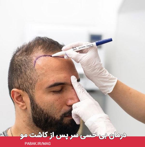 بی حسی سر پس از کاشت مو - مراقبت های بعد از کاشت مو