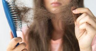 درمان ریزش مو حاصل از تیروئید