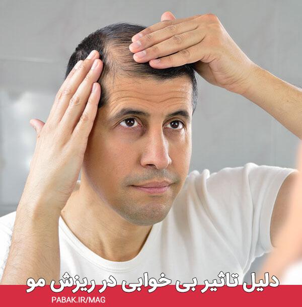 تاثیر بی خوابی در ریزش مو - تاثیر بی خوابی در ریزش مو