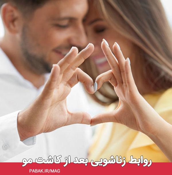 زناشویی بعد از کاشت مو - مراقبت های بعد از کاشت مو