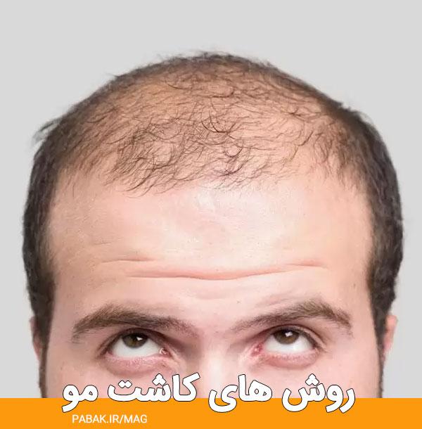 های کاشت مو - مراقبت های قبل کاشت مو