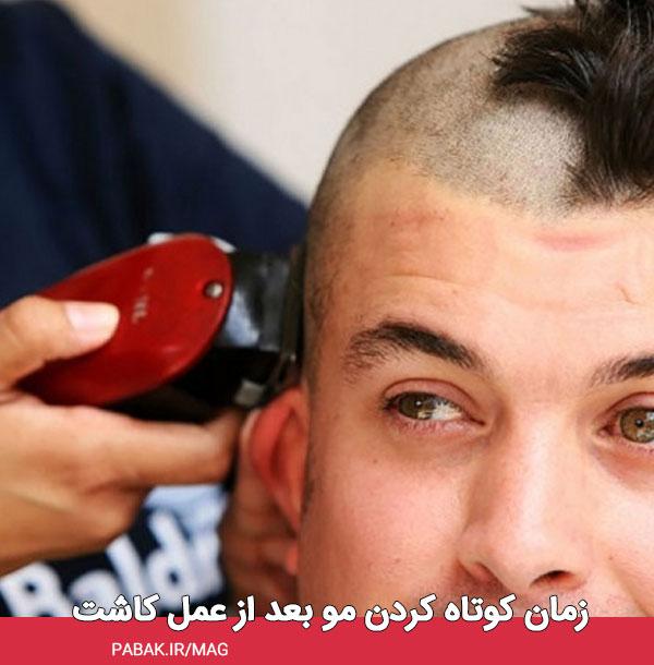 کوتاه کردن یا رنگ کردن مو بعد از عمل کاشت - مراقبت های بعد از کاشت مو