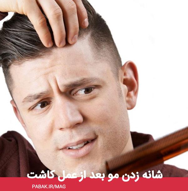 زدن مو بعد از عمل کاشت - مراقبت های بعد از کاشت مو