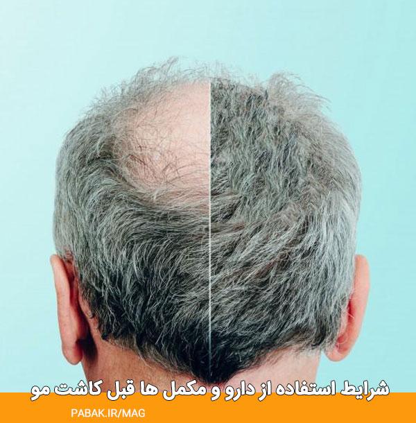 استفاده از دارو و مکمل ها قبل کاشت مو - مراقبت های قبل کاشت مو