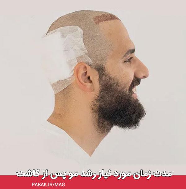 زمان مورد نیاز رشد مو پس از کاشت - مراقبت های بعد از کاشت مو