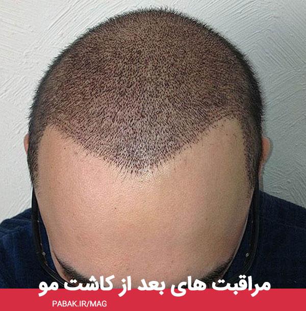 های بعد از کاشت مو - مراقبت های بعد از کاشت مو