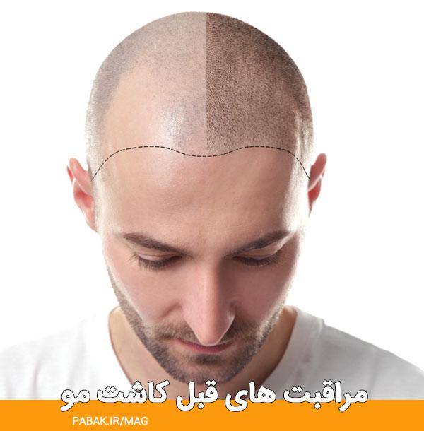 های قبل کاشت مو - مراقبت های قبل کاشت مو