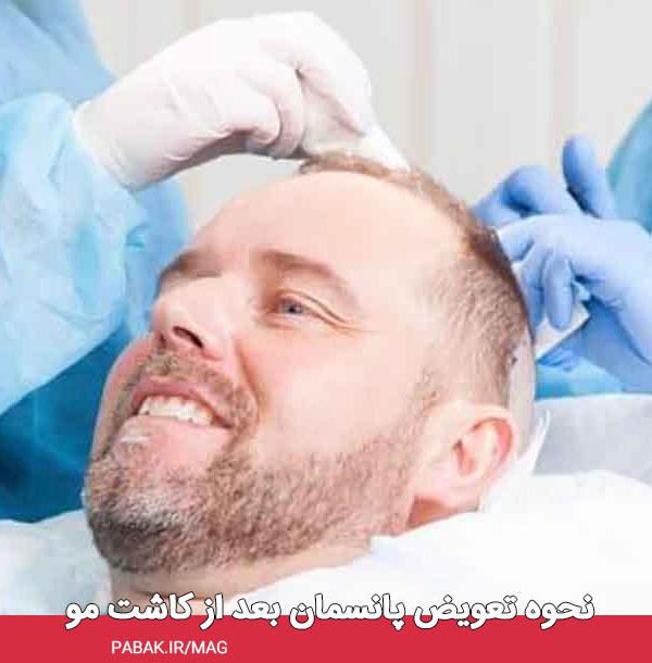 تعویض پانسمان بعد از کاشت مو - مراقبت های بعد از کاشت مو