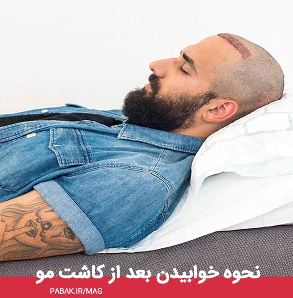 خوابیدن بعد از کاشت مو - مراقبت های بعد از کاشت مو