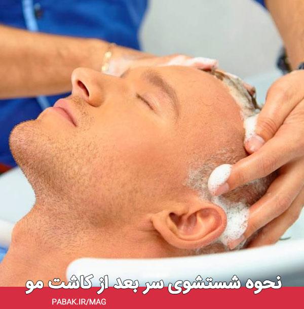 شستشوی سر بعد از کاشت مو - مراقبت های بعد از کاشت مو