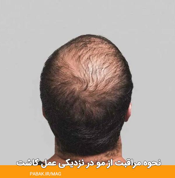 مراقبت از مو در نزدیکی عمل کاشت - مراقبت های قبل کاشت مو