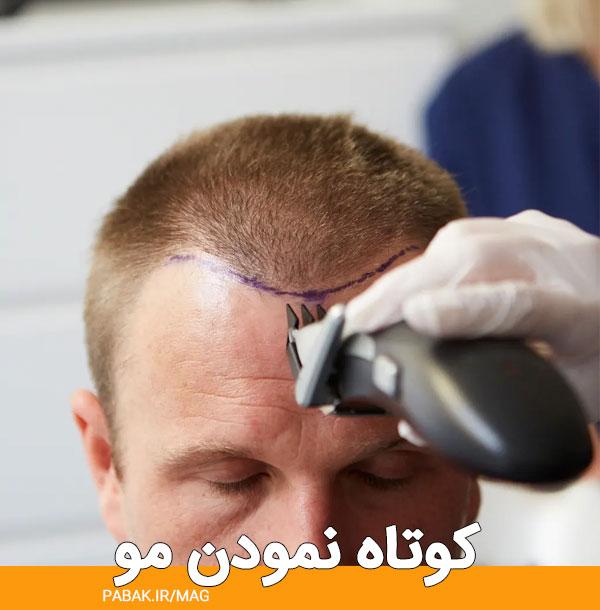 نمودن مو بسته - مراقبت های قبل کاشت مو