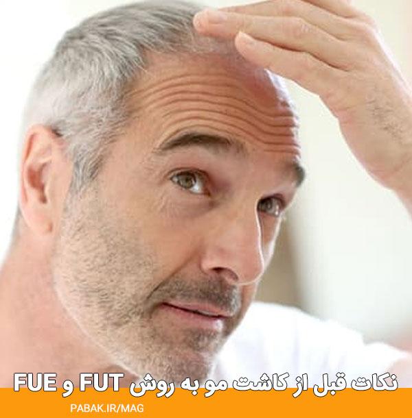 fue و fut نکات قبل از کاشت مو به روش - مراقبت های قبل کاشت مو